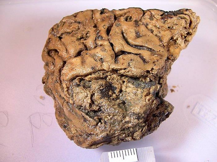 Zachovalá mozková tkáň člověka, který zemřel před 2600 lety