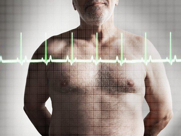Nárůst kardiovaskulárních chorob je velkým břemenem i pro zdravotní systémy.