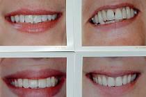 Chtěl mít zřejmě hezčí úsměv, ukradl zubní pastu. Ilustrační snímek.