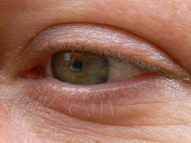 Irisdiagnostika. Ilustrační snímek.