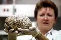 Mozek je stále záhadou. Ilustrační snímek.