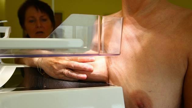 Vyšetření mamografem
