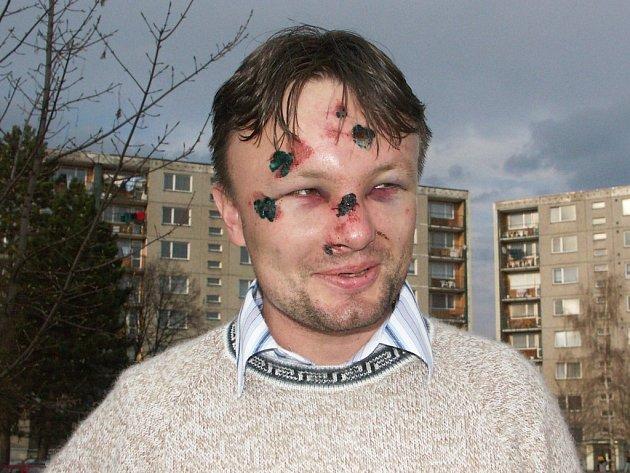 Jindřich Berounský po potyčce v dubnu loňského roku tvrdil, že se jednalo o cílený útok na jeho osobu s politickým pozadím.