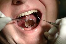 Pacient v zubní ordinaci. Ilustrační snímek.