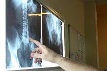 Oddělení RTG v jablonecké nemocnici.