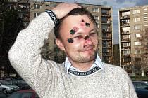 V sobotu 22. dubna 2006 v 02.30 hodin napadli útočníci tehdy opozičního zastupitele Jindřicha Berounského u restaurace Cyklura v jabloneckém Mšeně. Chvíli předtím se ale popral ještě jednou nedaleko odsud.