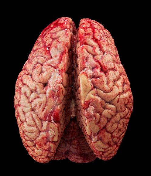 Mozek in natura - pohled zeshora