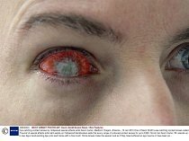 Mandatory Credit: Photo by Kevin Smith/Solent News / Rex Features ( 1085405m ) One of Kevin Smith\'s eye-catching contact lenses called \'Trauma\' Eye-catching contact lenses by Hollywood special ef