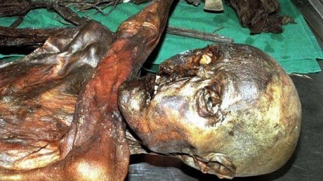 Ledový muž Ötzi byl politováníhodný kardiak. Nesnášel mléko a zlobily ho tepny