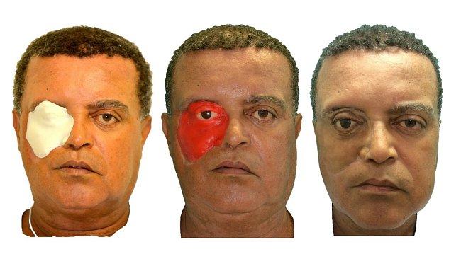 Carlito Conceicao (54) je prvním člověkem, kterému byla vytvořena 3D protéza pomocí bezplatné mobilní aplikace.