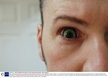 Mandatory Credit: Photo by Kevin Smith/Solent News / Rex Features ( 1085405o ) One of Kevin Smith\'s eye-catching contact lenses called \'Green Orc\' Eye-catching contact lenses by Hollywood special