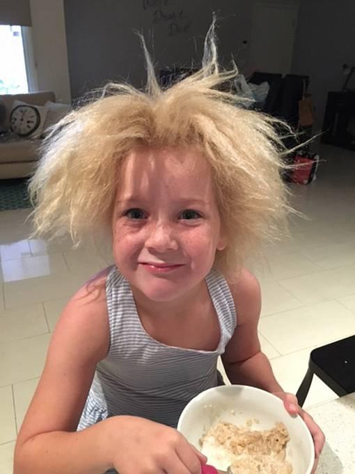 Sedmiletá Shilah už si na vzhled svých vlasů zvykla.