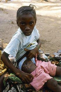 Povstalci se neštítili ubližovat i dětem. Dívka ukazuje své zranění způsobené rebely.