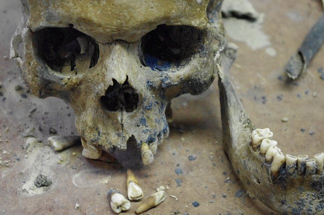 Lebka vojáka z 18. století, který zemřel za sedmileté války po bitvě u Liberce a byl objeven při archeologickém průzkumu Nerudovo náměstí v centru Liberce.