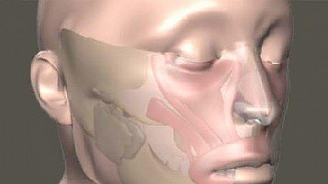 Armáda řeší, jak transplantovat obličej. Zájemců jsou stovky