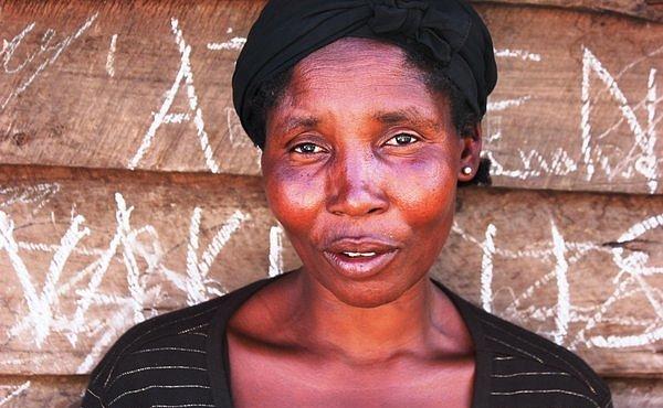 FOTOPŘÍBĚH: Lékaři bez hranic v Kongu bojují s větrnými mlýny. Spirála násilí zdaleka nekončí