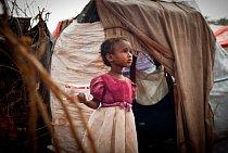 Podvyživená holčička, která se svou rodinou v prosinci 2006 uprchla před boji z Mogadiša. Od té doby žije rodina s deseti dětmi v uprchlických táborech. Guri El, Somálsko, říjen 2011.