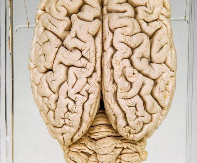 Konzervovaný prasečí mozek. Výzkumníci, kteří použili mozky živočichů zabitých na potravu, teď obnovili některé buněčné funkce v prasečích mozcích několik hodin po porážce zvířete, což může nabídnout nový přístup ke studiu a léčbě nemocí a poruch mozku.