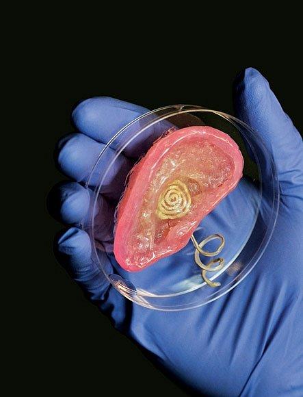 """Bionické ucho vytištěné výzkumníky z Princetonské univerzity využívá """"inkousty"""" z křemíku a chondrocytů, tedy buněk, které vytvářejí chrupavku. Kovová spirála přijímá  a přenáší elektrické impulzy, které by mohly stimulovat sluchový nerv."""