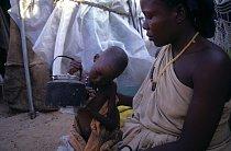 V Somálsku (Mogadišu) v roce 1992. Podvyživené dítě v centru pro uprchlíky.