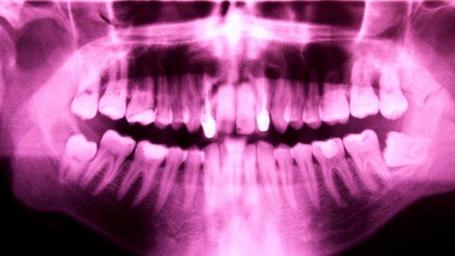 Za nádory na mozku mohou rentgeny zubů, naznačuje studie