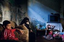 Dvanáctiletý Chámis (vlevo) našel při hře venku nevybuchlou dělovou střelu. Přinesl ji domů a střela mu vybuchla do obličeje. Při několika operacích v izraelské nemocnici mu lékaři odstranili střepinu