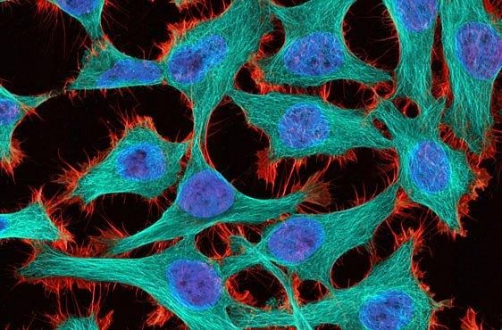 Nejlepší mikrofotografie světa: krásná může být blecha, rakovina i mýdlo