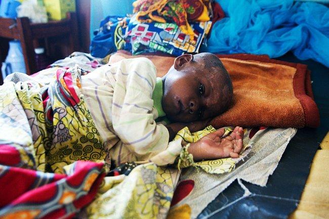Na krizi se pomalu zapomíná, ale to neznamená, že neexistuje. Uprchlíci utíkají do velmi chudé konžské oblasti a smysluplná intervence musí zahrnovat také potřebnou pomoc hostitelské komunitě.