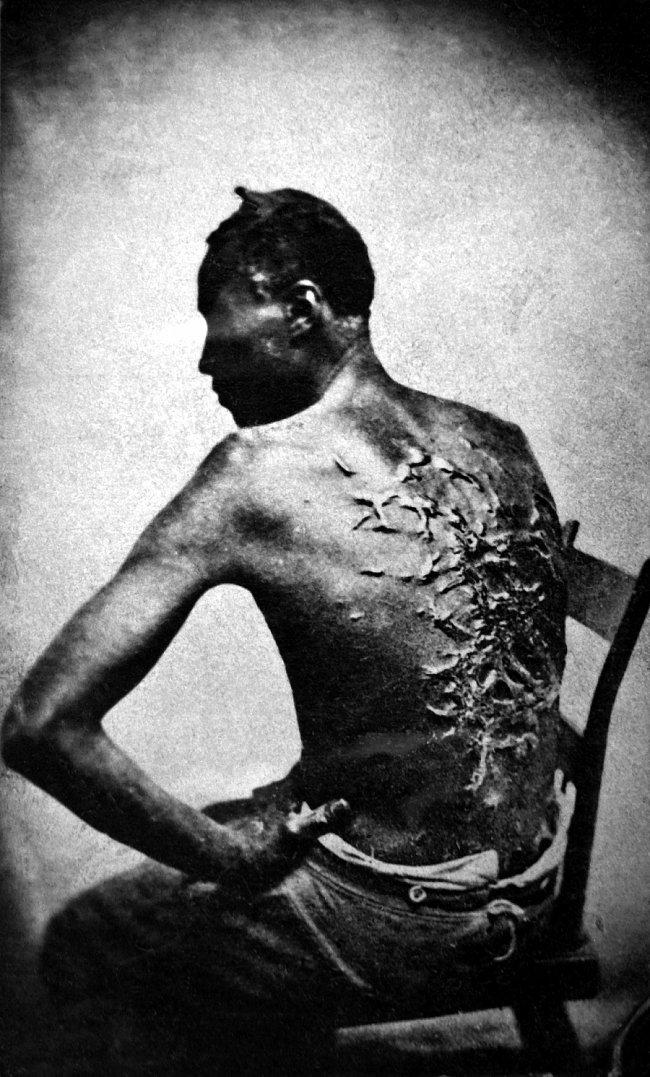 Bičovaný otrok