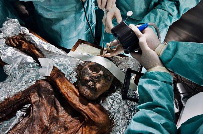 Neurochirurgové provádějí v roce 2011 pitvu pět tisíc let staré neolitické mumie, aby zjistili její genetický kód a příčinu smrti. Člověk doby ledové byl nalezen v Alpách na hranici Rakouska a Itálie v roce 1991.