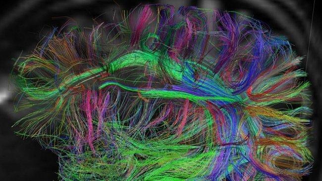 Země neznámá i fantastická: Mapa lidského mozku připomíná sen