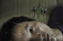 Pacient trpící ochrnutím obličejových svalů se podrobuje léčbě akupunkturou ve městě Jiaxing ve východní Číně.