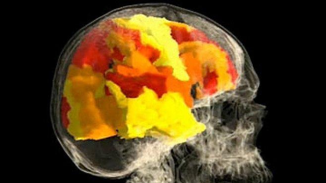 VIDEO: Co se děje v ženském mozku při orgasmu