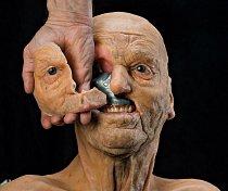 (nahoře vpravo). Model ukazuje titanový plát pod tváří pacienta, který následkem rakoviny přišel o lícní kost, horní čelist a pravé oko (dole). Technici vytvořili na 3D tiskárně implantát s využitím digitálních skenů zdravé strany tváře.
