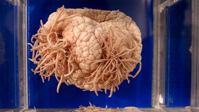 Parazitologické muzeum v Tokiu ukazuje i devítimetrové tasemnice