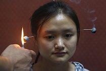 Doktor zapaluje moxu během tradičního obřadu, který má vyléčit bolesti hlavy a nespavost. Moxa se používá v tradiční čínské medicíně k prohřívání aktivních bodů. Základní surovinou pro výrobu moxy je