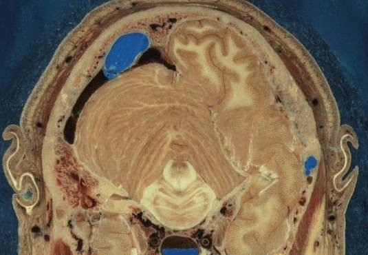 Cesta lidským mozkem: projděte 700 vrstev za minutu