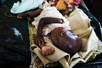 Maminky v DR Kongo se učí je, jaká je správná skladba jídelníčku pro batolata od 6 do 23 měsíců, aby dostaly všechny potřebné látky pro přirozený růst a mentální vývoj.