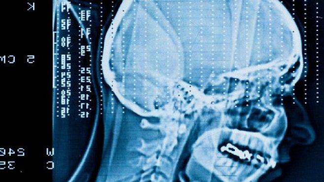 Inteligence je stará půl miliardy let. Začala se vyvíjet u mořských živočichů