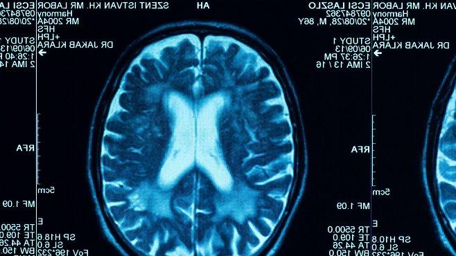 Umírá mozek na osmitisícovkách? Většinou ano, ale Radek Jaroš je výjimkou potvrzující pravidlo