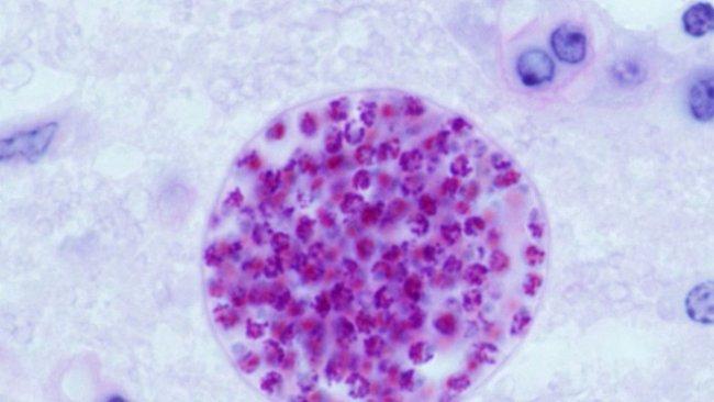 ROZHOVOR: Toxoplazma dokáže změnit lidské chování. Můžete se nakazit od koček