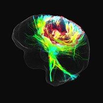 OPERACE Snímky mozku jednoho zFortinových pacientů ukázaly, že tumor (červeně zbarvený, nahoře) prorostl do oblasti, která řídí pohyby rukou a nohou.