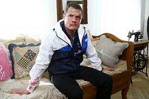 Ondřej Veselý v seriálu Svatby v Benátkách dostal pořádně do těla.