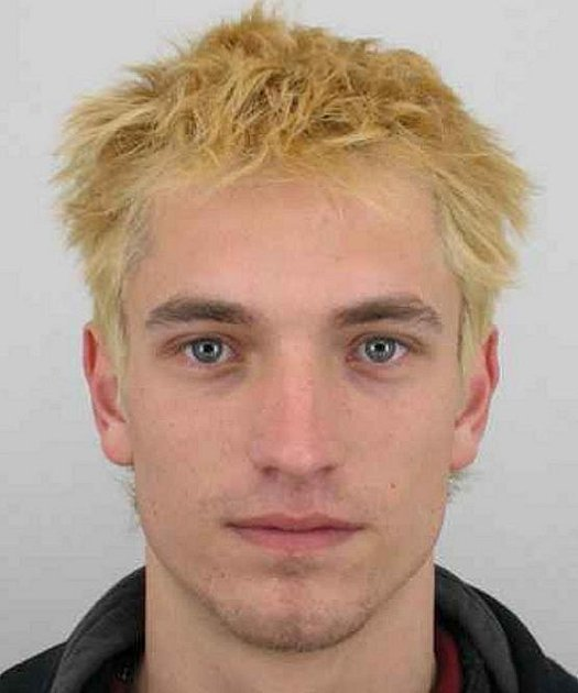 VLASY má v současné době hledaný pacient Tomáš Makovický hnědé.