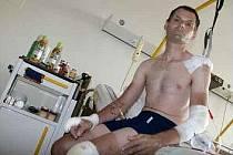 ZRANĚNÍ. Petr Šinágl měl nepříjemný pád, ale už na nemocničním lůžku myslel na kolo.