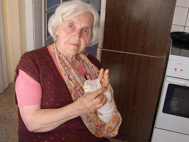 """Marii Šestákovou z Poplz napadl volně pobíhající pes. Vážně ji zranil. """"Majitel psa se nepřišel ani omluvit,"""" řekla žena."""