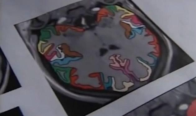 Mozek Jill je zvětšený v oblasti spojované s obsedantně-kompulzivní poruchou
