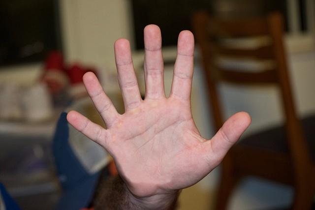 Šest prstů na ruce podle vědců umožňuje více úkonů jemné motoriky.
