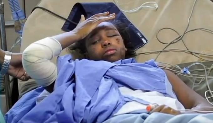 Bahía Bakari v nemocnici po pádu letadla