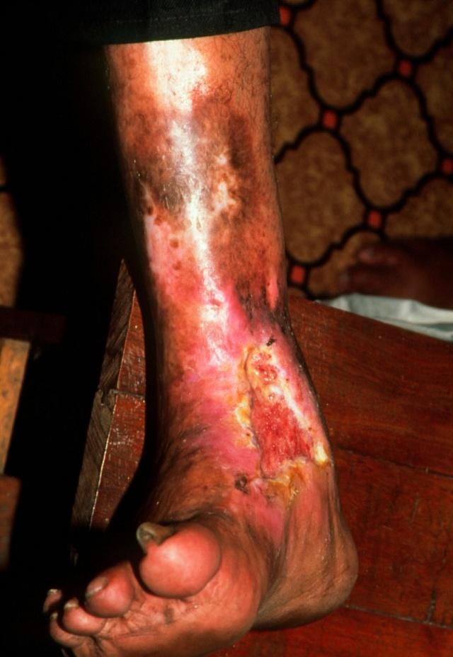 Lepra postihuje nejčastěji končetiny a obličej.